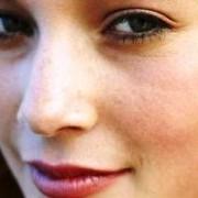 Trauminės nosies korekcija